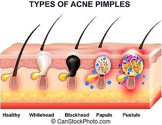 acne, composizione, anatomia, pelle