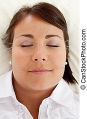 agopuntura, facciale, trattamento bellezza