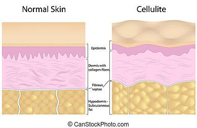 contro, cellulite, pelle liscia