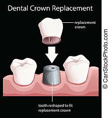 dentale, corona, sostituzione
