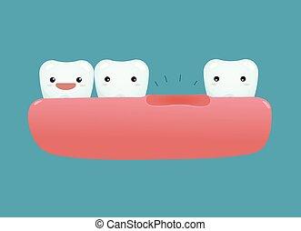 dentale, dente mancante