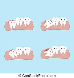 dentale, denti, dente, orale, o, malattie, saggezza, avuto impatto