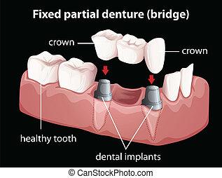 dentiera, fisso, parziale
