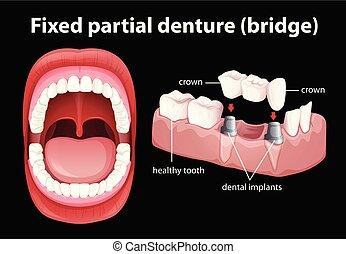 dentiera, medico, vettore, parziale, fisso