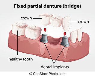 dentiera, ponte, fisso, parziale
