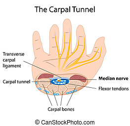 eps8, tunnel, carpale, sindrome