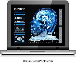future., medicina, medico, vettore, mri, quaderno, altro, analyzes., monitor, illustrazione, real-time, bianco