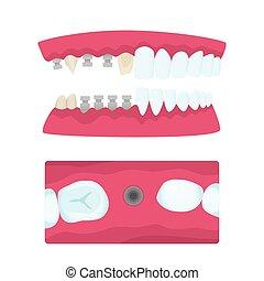 impianto, dentale, corone