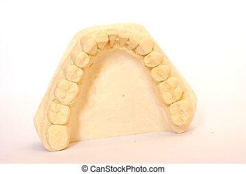 impressione, dentale, 2