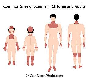 luoghi, eczema