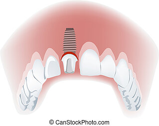 mandibola, falso, dente