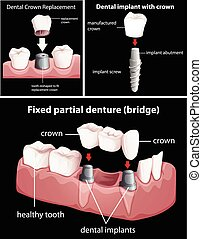 nero, dentale, procedure