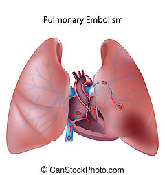polmonare, eps10, embolia