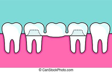 ponte, dentale, fila, denti