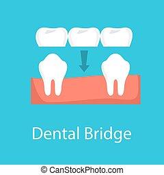 ponte, dentale, idea, dente, protesi, concept.