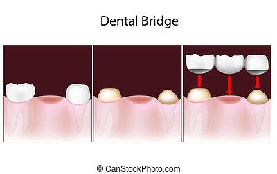 ponte, dentale, procedura