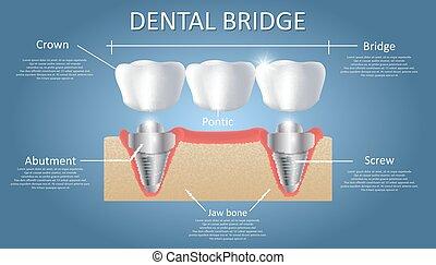 ponte, educativo, concetto, manifesto, dentale, diagramma, vettore