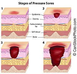 pressione, palcoscenici, sores, eps8