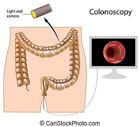 procedura, eps8, colonoscopy