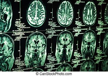 scansione, molto, cervello, verde, umano, affilato