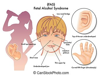 sindrome, fetale, alcool