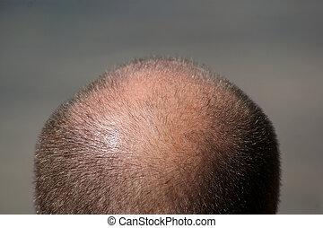 testa, balding, uomo