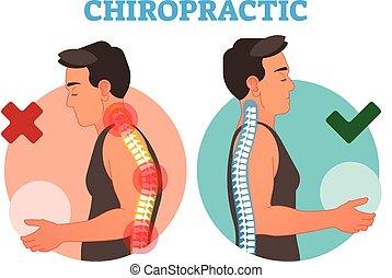 vettore, concettuale, curvature., spina dorsale, chiropratica, illustrazione